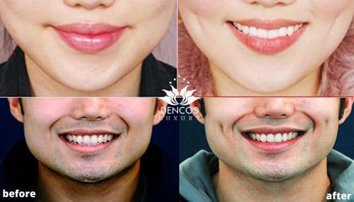 Bí kíp tạo điểm nhấn cho khuôn mặt thêm xinh - 3