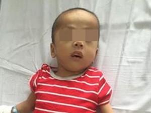 Bé trai 5 tuổi bị chó cắn đứt dương vật, không thể nối lại