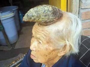 """Kỳ lạ: Nốt ruồi biến thành """"sừng"""" lớn trên đầu"""
