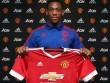 Martial không hiểu sao MU mua mình đến 36 triệu bảng