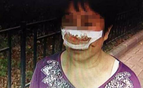 Người phụ nữ họ Yang bị chồng cắn đứt mũi. Ảnh: SCMP