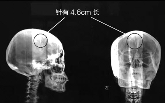 Sốc khi phát hiện chiếc kim dài gần 5cm kẹt trong não hàng chục năm - 1