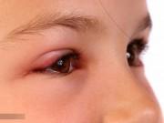 Cách chữa lẹo mắt cho bà bầu nhanh nhất