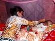 Người đàn ông Việt bị virus lạ ăn thủng mặt lên báo nước ngoài