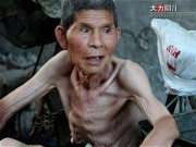 Nhịn đói để sống trường thọ và cái kết đau đớn cho cụ ông 60 tuổi
