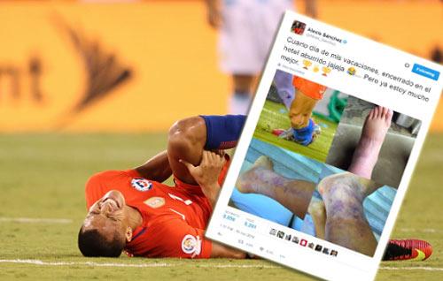 Tin HOT tối 1/7: Neymar CHÍNH THỨC ở lại Barca - 3