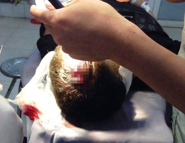 Tình tiết bất ngờ vụ CSGT bắn súng vào người dân - 2