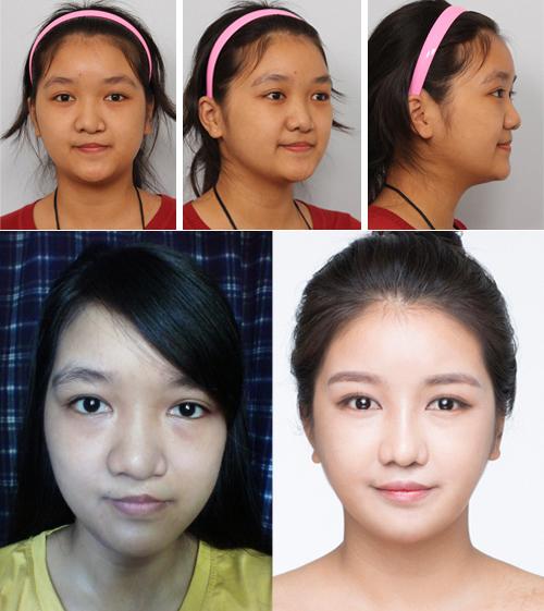 Bất ngờ với nụ cười đẹp của 2 cô gái Việt từng sứt môi - 1