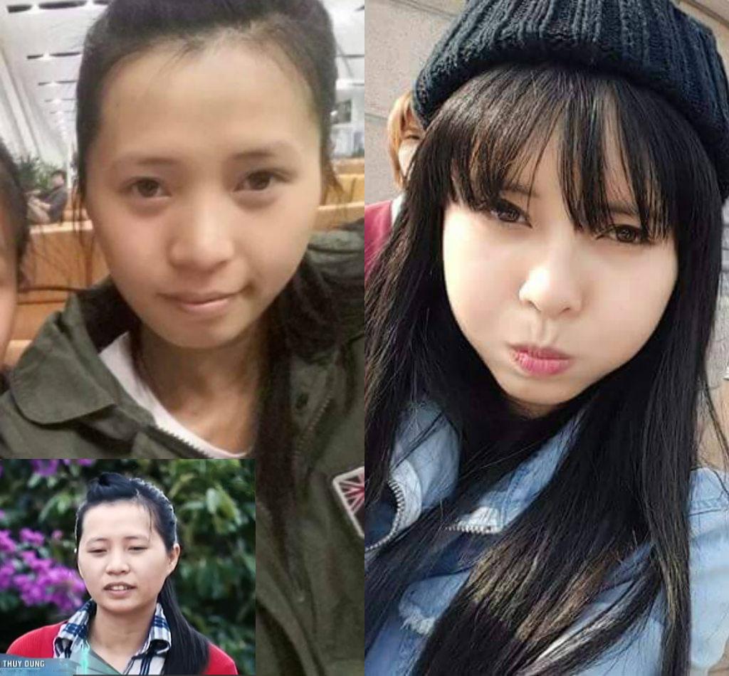 Bất ngờ với nụ cười đẹp của 2 cô gái Việt từng sứt môi - 4