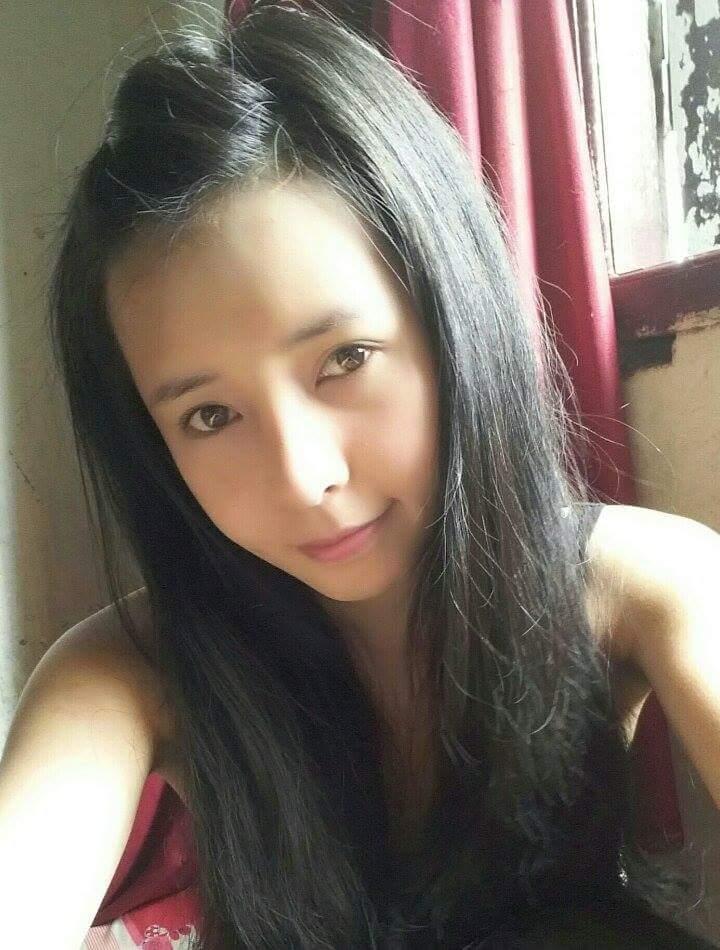 Bất ngờ với nụ cười đẹp của 2 cô gái Việt từng sứt môi - 6