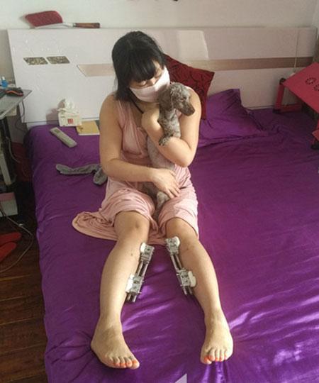 """Tấn bi kịch của cô gái """"dao kéo nhiều nhất Trung Quốc"""" - 2"""
