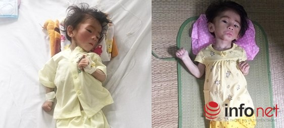 """Cháu bé """"14 tháng nặng 3,5 kg"""" đã được ra viện - 1"""