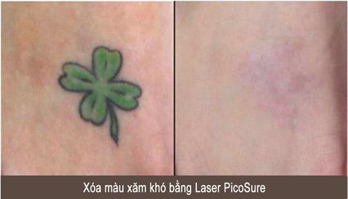Xóa xăm, nám, tàn nhang bằng siêu laser Mỹ PicoSure - 2