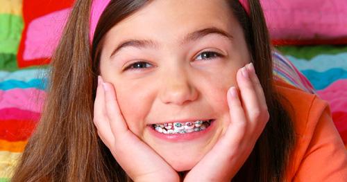 Niềng răng, phẫu thuật hàm thế nào để đảm bảo khớp cắn lý tưởng - 3