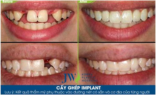 Niềng răng, phẫu thuật hàm thế nào để đảm bảo khớp cắn lý tưởng - 5