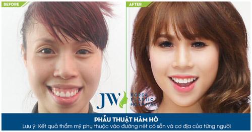 Niềng răng, phẫu thuật hàm thế nào để đảm bảo khớp cắn lý tưởng - 6