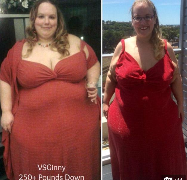 2 cô gái khốn khổ vì da thừa đáng sợ hậu giảm cân - 8