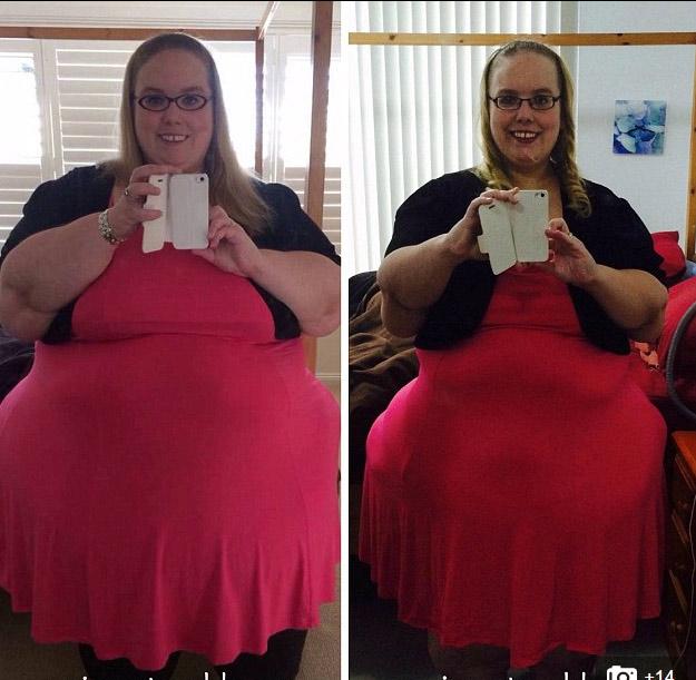 2 cô gái khốn khổ vì da thừa đáng sợ hậu giảm cân - 7