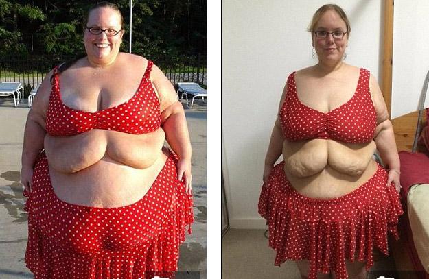 2 cô gái khốn khổ vì da thừa đáng sợ hậu giảm cân - 6