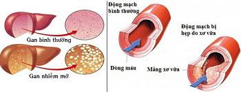 Đã tìm ra thảo dược hạ mỡ máu ưu việt - 2