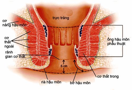Bệnh lý gây khó chịu vùng hậu môn - 1