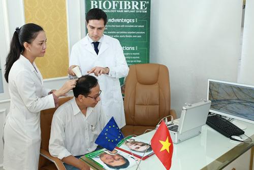 Biofibre – giải pháp tối ưu xóa bỏ nỗi lo rụng tóc hói đầu - 2