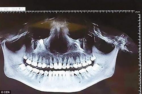 Người phụ nữ khốn khổ vì răng mọc dưới mắt - 1