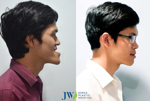 Những ca phẫu thuật thẩm mỹ đang gây xôn xao của JW - 3
