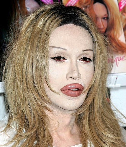 6 sao Hollywood suýt hỏng môi vì tiêm chất làm đầy - 8