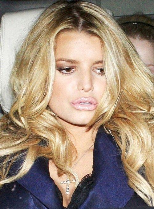 6 sao Hollywood suýt hỏng môi vì tiêm chất làm đầy - 6