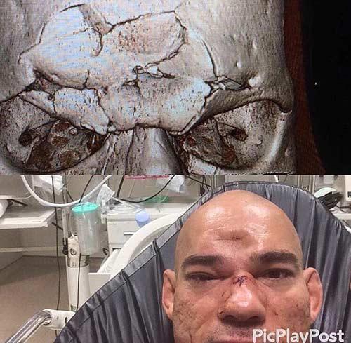 """Kinh hoàng MMA: """"Người nhện"""" đá gối, đối thủ nhập viện - 2"""