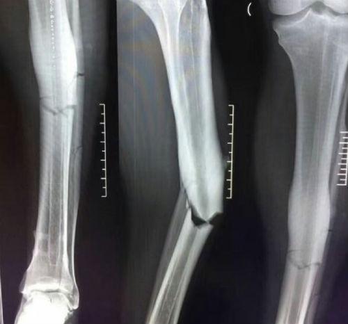 """""""Rợn người"""" bản X-quang chân gãy của Demba Ba - 2"""