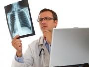 Sức khỏe đời sống - Vì sao ung thư phổi là 1 trong 3 dạng ung thư đáng sợ nhất?