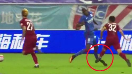 """Chấn thương ghê rợn: Demba Ba """"nhập hội"""" Ronaldo - 1"""