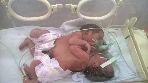 Có thể chỉ cứu được một trong hai trẻ song sinh dính liền - 1
