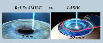 ReLEx SMILE – Phương pháp phẫu thuật cận thị an toàn! - 2