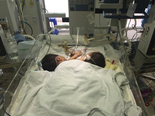 Không thể tách rời 2 bé song sinh dính liền ở Hà Giang - 2