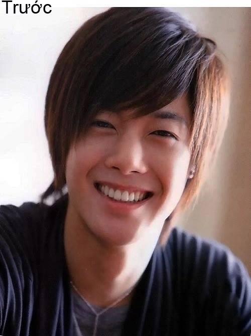 7 ca sĩ danh tiếng nhất xứ Hàn thừa nhận dao kéo - 1
