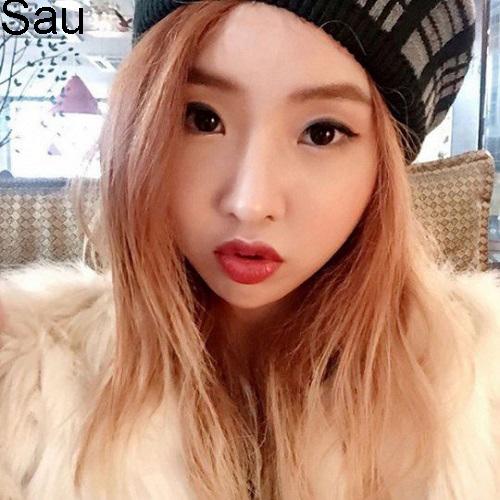 7 ca sĩ danh tiếng nhất xứ Hàn thừa nhận dao kéo - 4