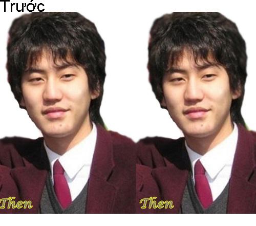 7 ca sĩ danh tiếng nhất xứ Hàn thừa nhận dao kéo - 7