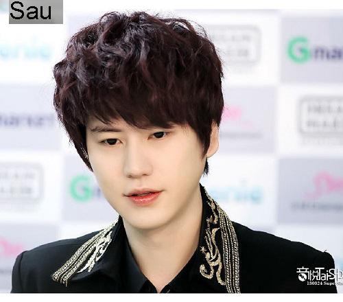 7 ca sĩ danh tiếng nhất xứ Hàn thừa nhận dao kéo - 8