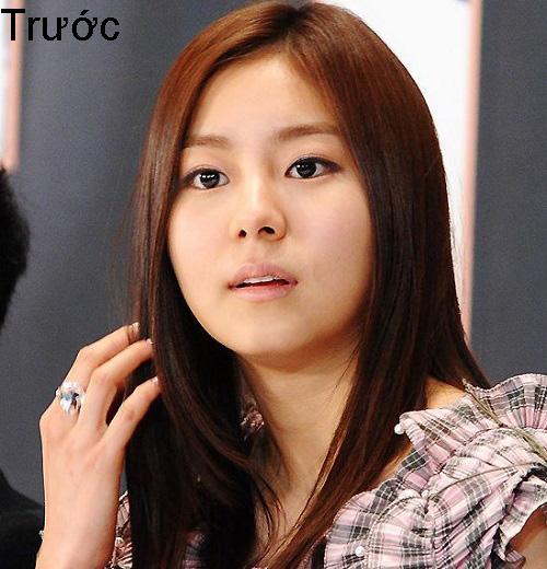 7 ca sĩ danh tiếng nhất xứ Hàn thừa nhận dao kéo - 11