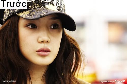 7 ca sĩ danh tiếng nhất xứ Hàn thừa nhận dao kéo - 9