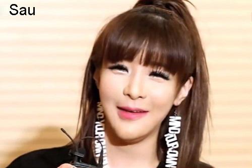 7 ca sĩ danh tiếng nhất xứ Hàn thừa nhận dao kéo - 10