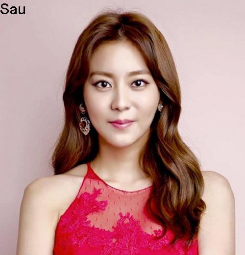 7 ca sĩ danh tiếng nhất xứ Hàn thừa nhận dao kéo - 12