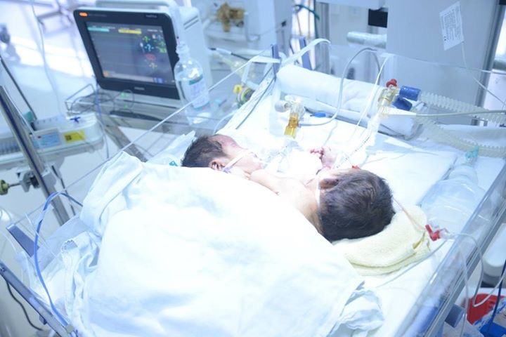 Hai bé sơ sinh dính liền ở Hà Giang đã tử vong - 1