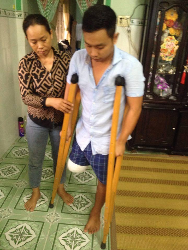 """Bệnh nhân bị cưa chân sau chẩn đoán """"vết thương phần mềm"""" - 2"""