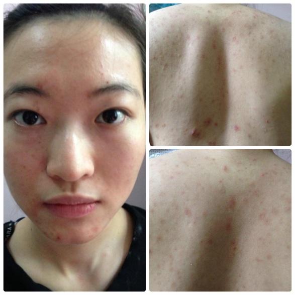 Khó tin 2 mỹ nữ này từng bị viêm da, chàm mặt - 1