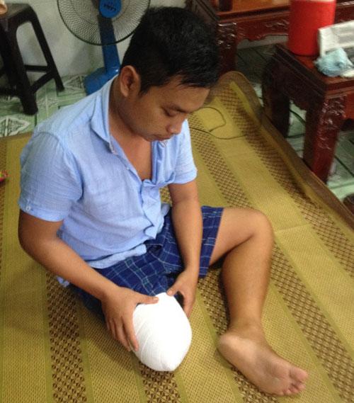 """Vụ bệnh nhân bị cưa chân ở TP.HCM: """"Đứt gánh"""" giấc mơ - 2"""