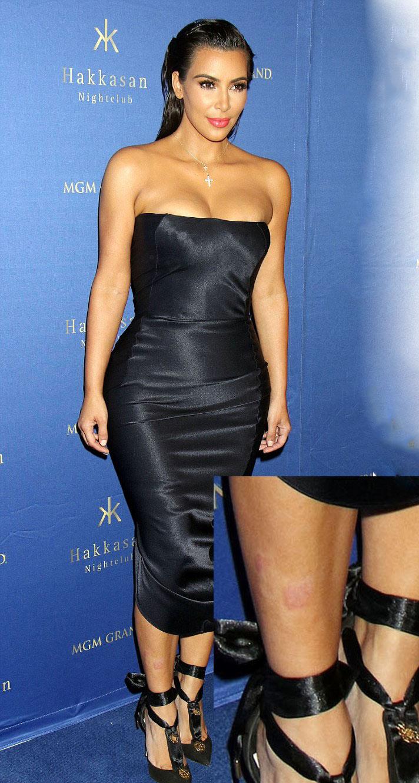 Kim Kardashian đau đớn, da xấu vì mắc bệnh vảy nến - 1